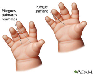 manos de un bebé con una linea palmar