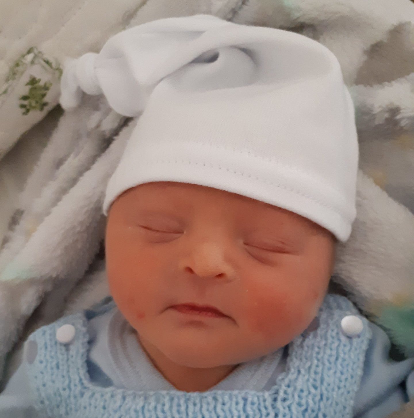 bebe recien nacido con síndrome de Down