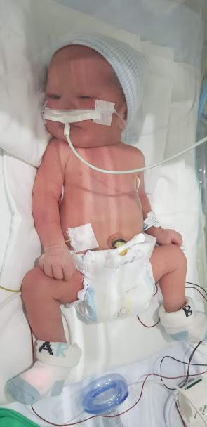 JuanSi bebé recien nacido con síndrome de Down