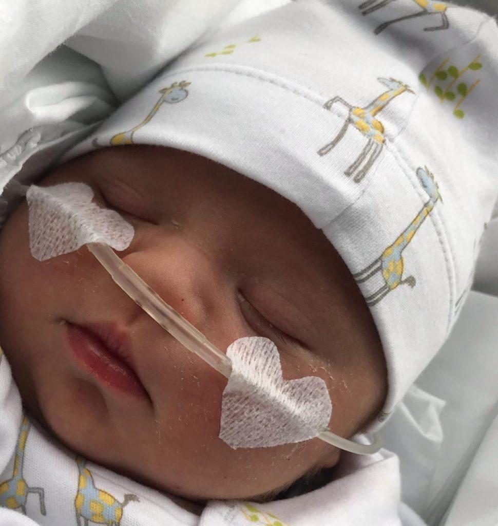Emiliano, bebé recien nacido con síndrome de Down con respirador